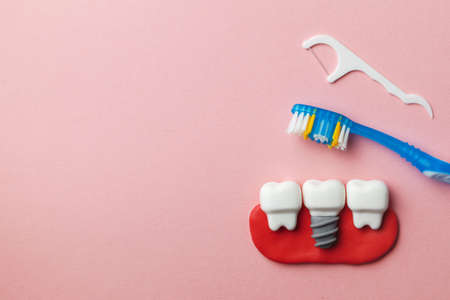 Healthy white teeth and implants on pink background with toothbrush and dental floss. Copy space for text