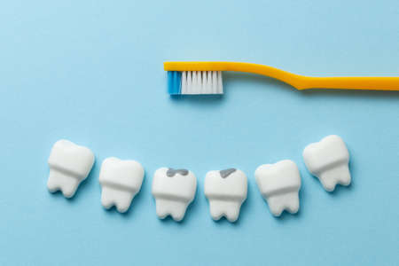 Healthy white teeth and tooth with caries on blue background and Toothbrush