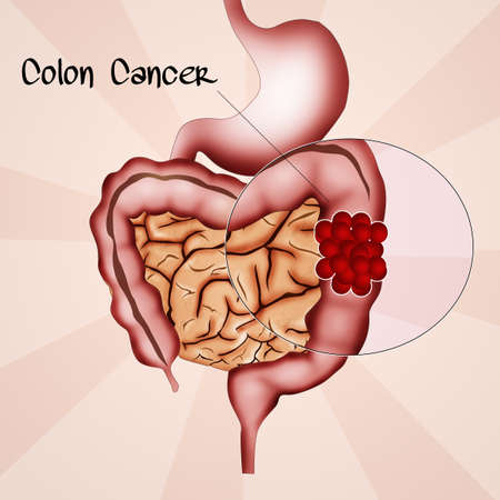 small bowel: colon cancer Stock Photo