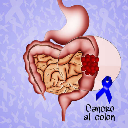 from small bowel: colon cancer Stock Photo