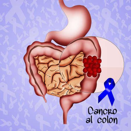 colorectal cancer: colon cancer Stock Photo