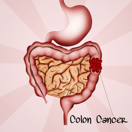 colorectal cancer: colon cancer Stock Photo