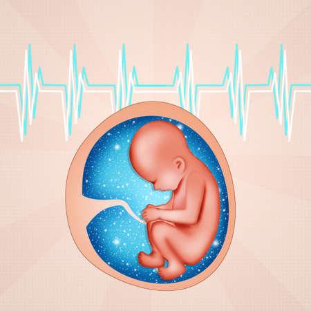 fetus: Fetus in womb