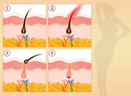 dermal: Permanent hair removal Stock Photo