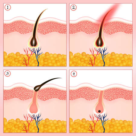 dermatology: hair removal