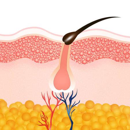 papilla: hair removal