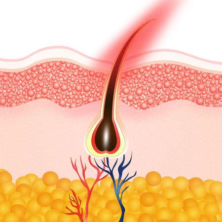 capillary: hair removal