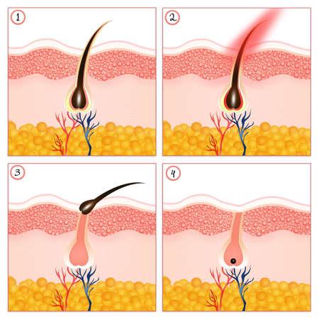 Permanent hair removal Reklamní fotografie