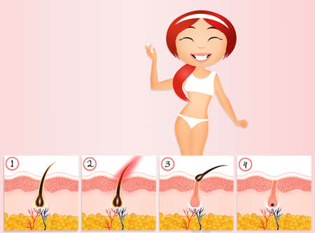 removal: Permanent hair removal Stock Photo