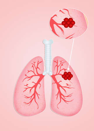 chest disease: Lungs cancer Stock Photo
