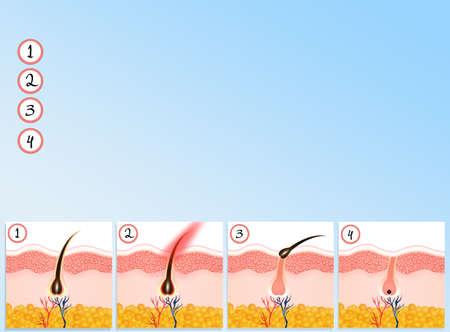 dermal: hair removal
