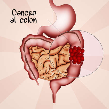 colon cancer: colon cancer Stock Photo