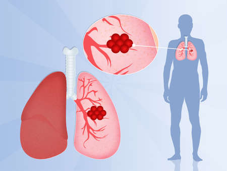 chest disease: Lungs Cancer