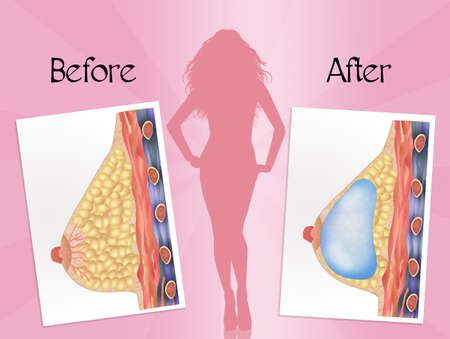 breast implant: before and after breast surgery