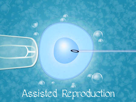 assisted reproduction photo