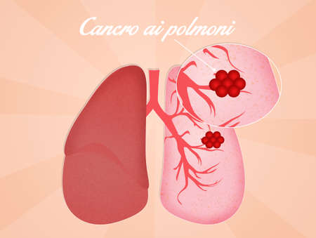 nodules: Lungs cancer Stock Photo