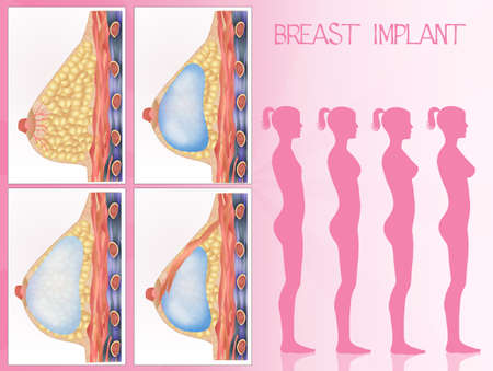breast implant: breast implants Stock Photo