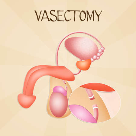 urethra: Vasectomy
