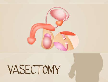 testiculos: Vasectom�a Foto de archivo