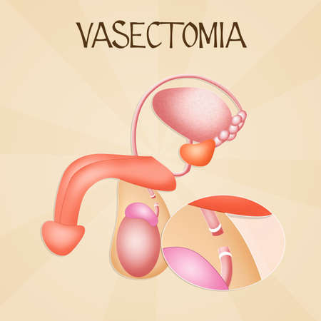 seminal vesicle: Vasectomy