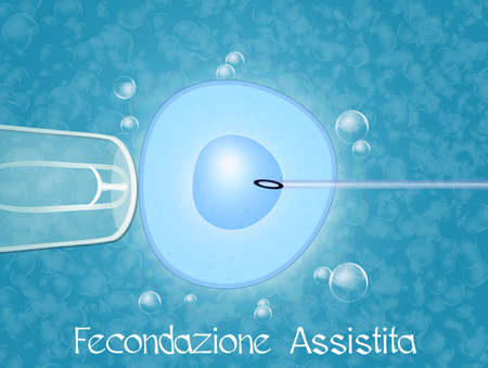 assisted: assisted reproduction