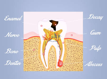 abscess: tooth scheme Stock Photo