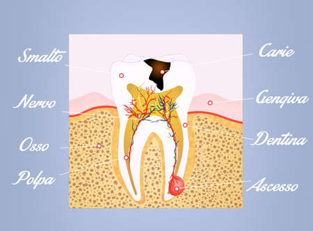 pulp: tooth scheme Stock Photo