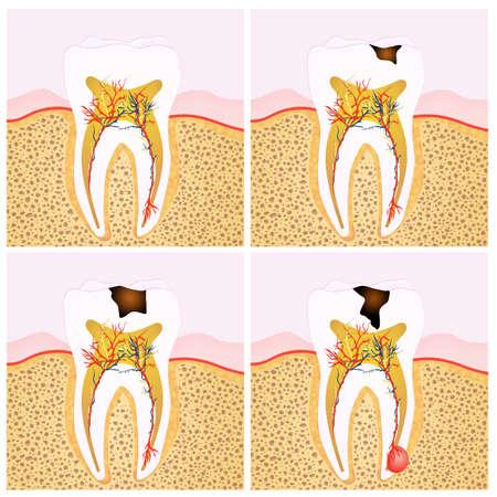 abscess: Tooth diagram Stock Photo