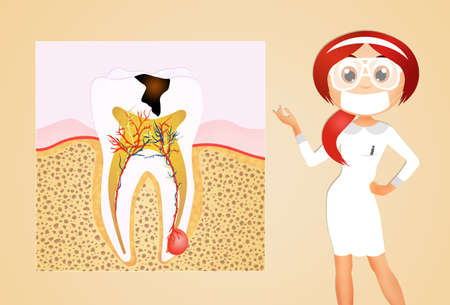 dentin: illustration of tooth decay Stock Photo