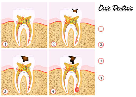 abscess: tooth decay