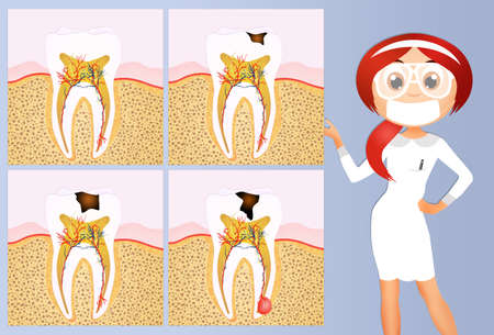dentin: illustration of tooth decay scheme Stock Photo