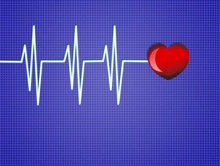 cardiogram: Electronic cardiogram
