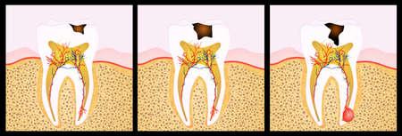 dentin: tooth decay scheme
