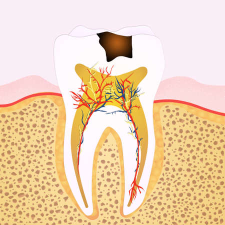 phase: phase of caries
