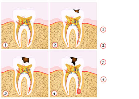 abscess: tooth decay scheme