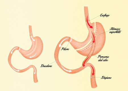 bypass: illustration of gastric bypass