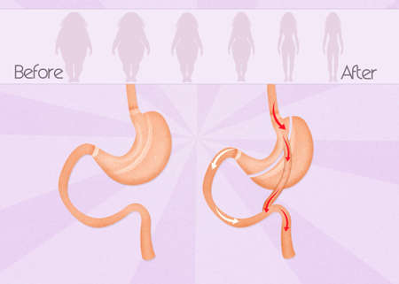 before and after gastric bypass surgery Stock Photo