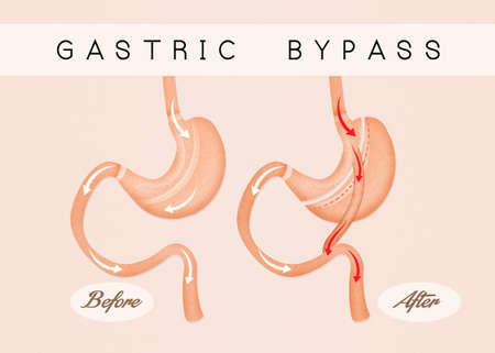 duodenum: before and after gastric bypass Stock Photo
