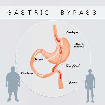 bypass: gastric bypass surgery
