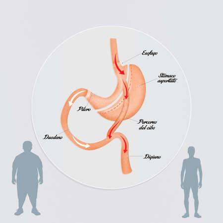 bypass: gastric bypass Stock Photo