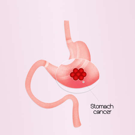 ulceration: stomach cancer