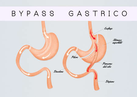 duodenum: gastric bypass Stock Photo