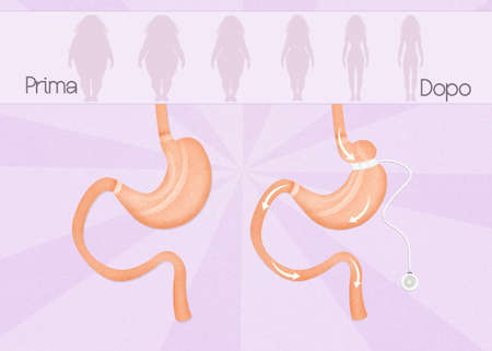 gastric: before and after gastric band surgery Stock Photo