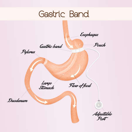 gastric: gastric band to reduce stomach Stock Photo