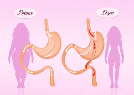 duodenum: before and after gastric bypass surgery Stock Photo