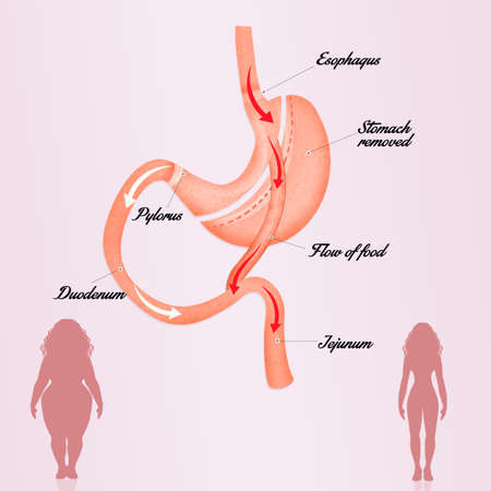 gastric: gastric bypass Stock Photo