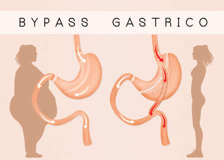 gastric: gastric bypass to reduce stomach