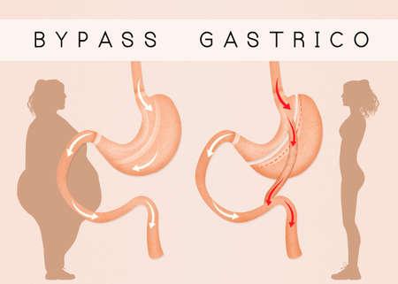 gastric bypass to reduce stomach Stok Fotoğraf - 63440776