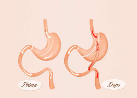 duodenum: gastric bypass surgery