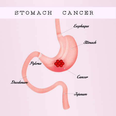mucosa: stomach cancer